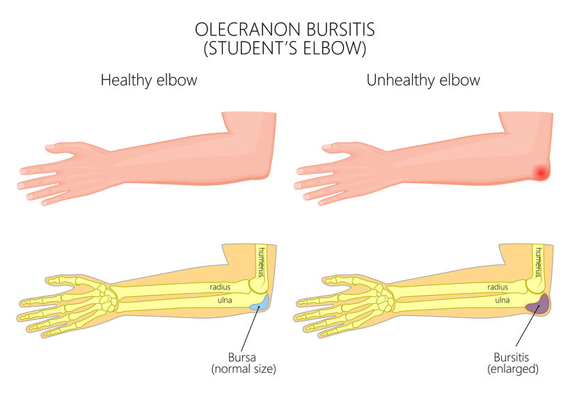 What Exactly Is Elbow (Olecranon) Bursitis - Infographic