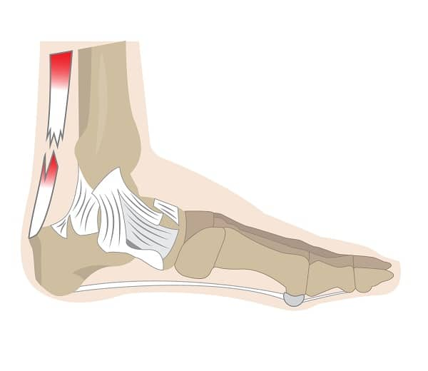 How To Detect and Treat a Ruptured Achilles Tendon - Infographic