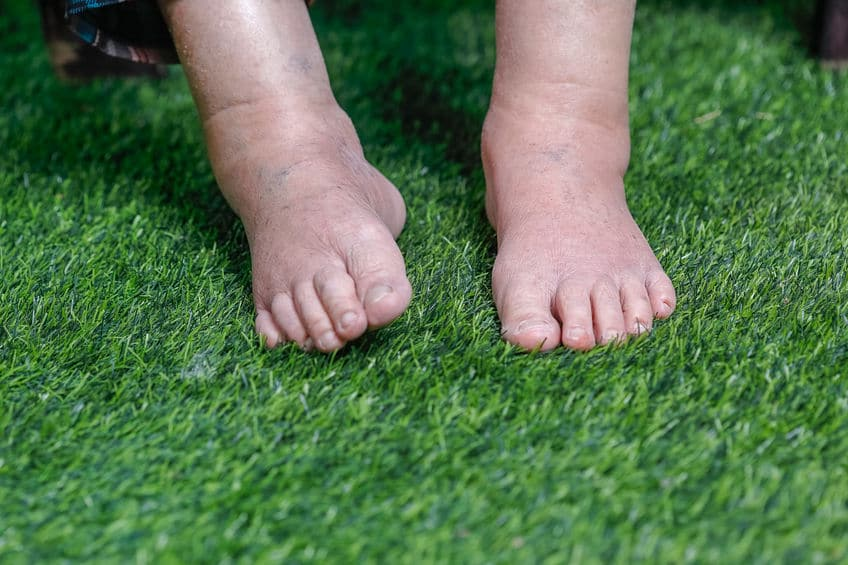 5 Reasons Why You Have Swollen Feet & How To Treat Them